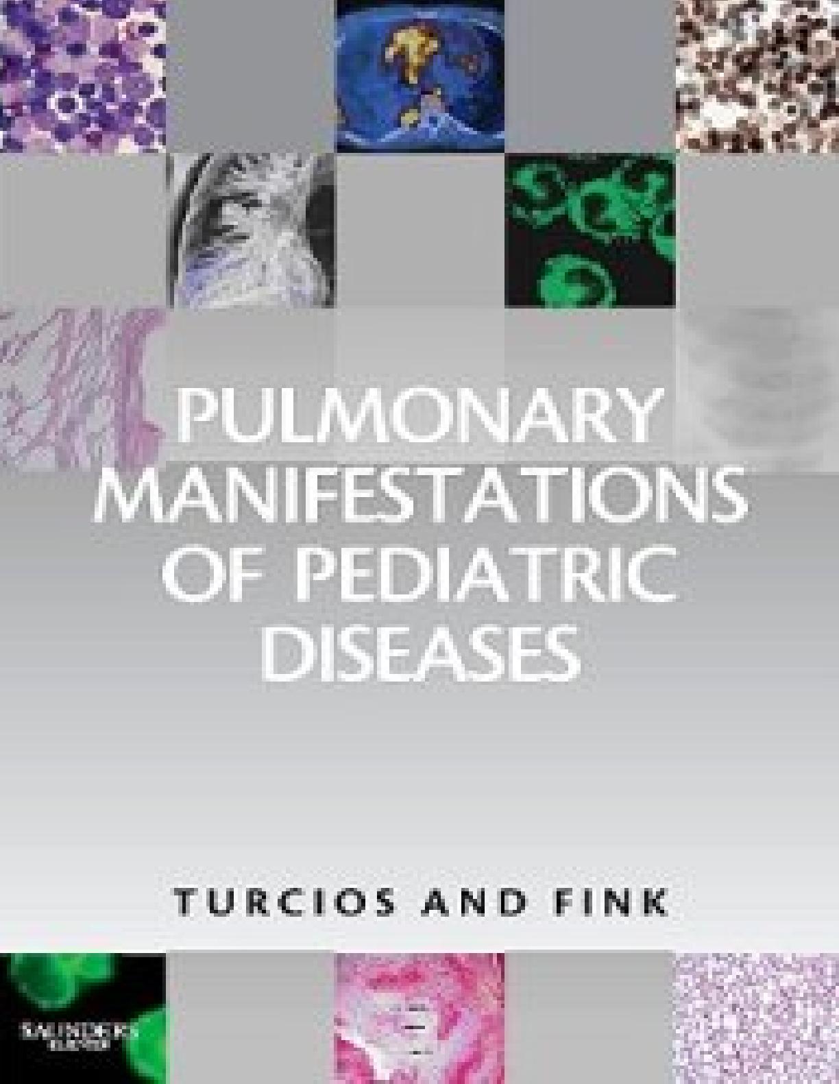 Canapé Jardin Inspirant Pulmonary Manifestations Of Pediatric Diseases [pdf Document] Of 33 Inspirant Canapé Jardin